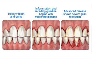 Diabetes and its impact on your oral health