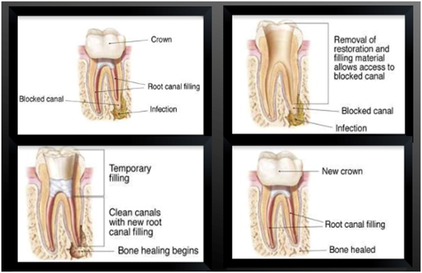 Unity Dental Burwood East| Root Canal Treatment in Melbourne